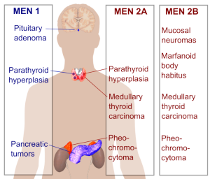 Multiple_endocrine_neoplasia